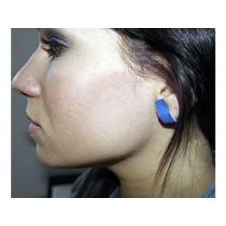 Piercing-Pflaster